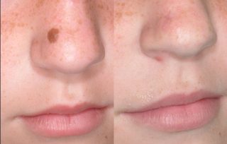 The Questions About Laser Mole Removal You've Always Wanted to Ask