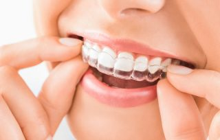 Advantages of visiting the best Invisalign clinic Singapore
